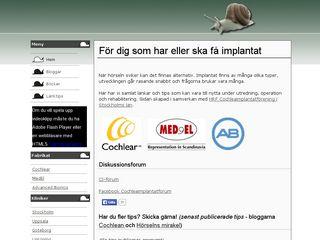 cochleaimplantat.se